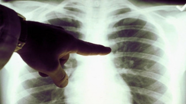 Încă se mai moare de tuberculoză în Argeș,în 2019!