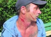 Simerea a fost prins furând telefoanele pacienţilor din Spitalul Câmpulung