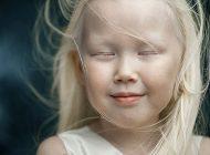 Nariyana, fetiţa cu albinism a cărei frumuseţe întrece orice imaginaţie. Agenţiile de modelling o copleşesc cu oferte