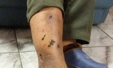 Un argeşean acuzǎ medicii din Curtea de Arges: «Am fost externat deşi nu mǎ vindecasem»