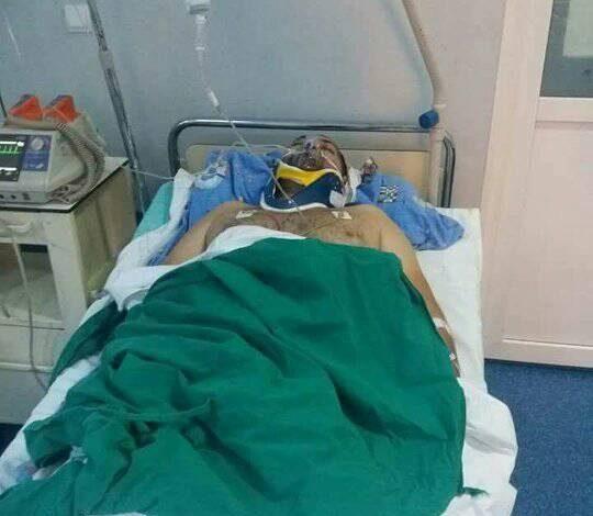 Victima unui grav accident, EDI are NEVOIE URGENTA DE SANGE