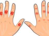 Pocnesti degetele? Afla urgent daca ai inceput de artrita din cauza acestui obicei