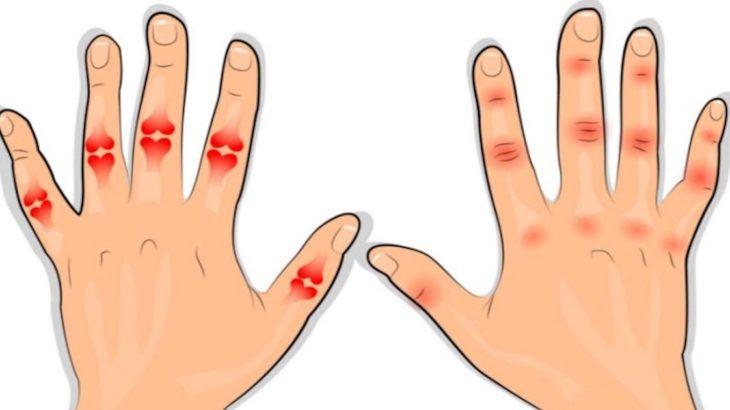 cauza artritei degetelor