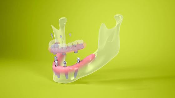 Una dintre cele mai importante inovaţii din stomatologie a ajuns şi în România