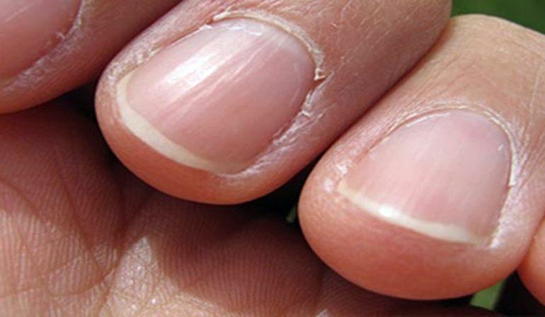 Bolile grave se văd pe unghii: Semnele la care trebuie să fii atent