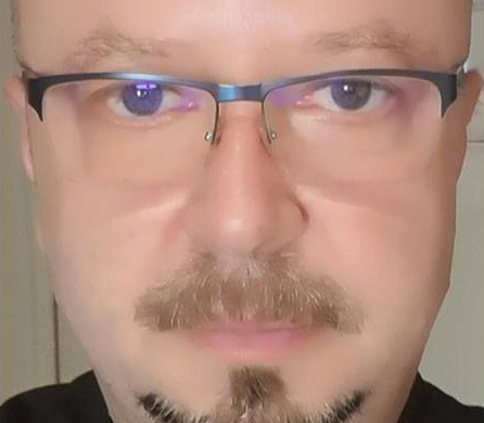 EXCLUSIV ! DE FIŢE? Fostul viceprimar Cristian Mitrofan şi-a făcut implant de păr - Mai bogat cu... cateva mii de fire