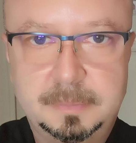 EXCLUSIV ! DE FIŢE? Fostul viceprimar Cristian Mitrofan şi-a făcut implant de păr – Mai bogat cu… cateva mii de fire