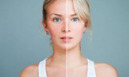 6 motive pentru care ţi se înroşeşte pielea