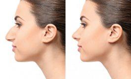 Vrei sa iti schimbi forma nasului? Afla mai multe despre rinoplastie